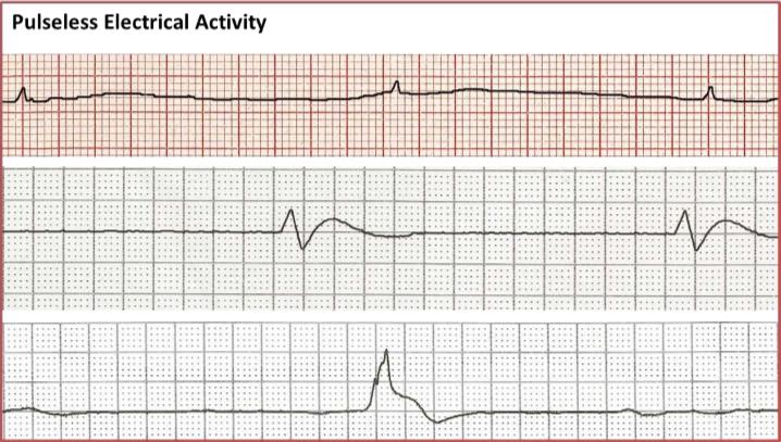 pulseless-electrical-activity