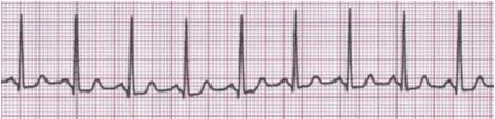 tachycardias-img