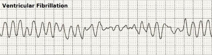 ventricular-fibrillation