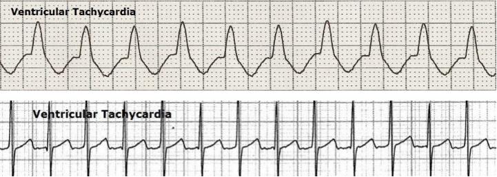 ventricular-tachycardia